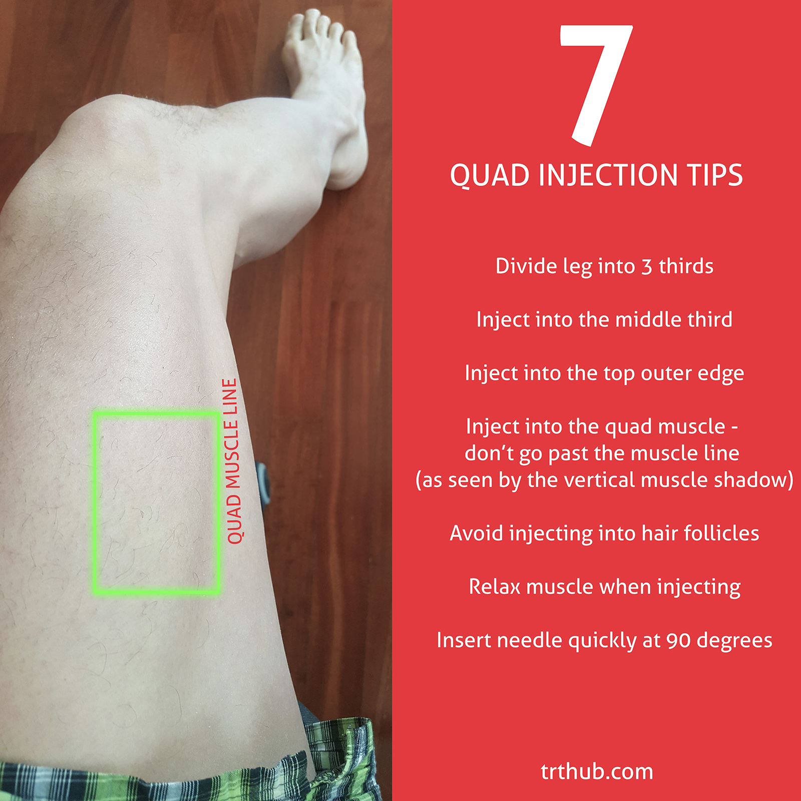 Quad injection tips to reduce injection pain